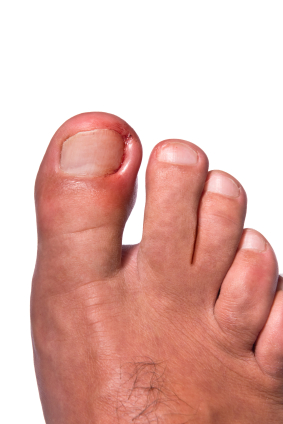 Ingrown Toenail Care