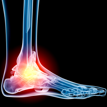 Systemic Diseases of the Foot
